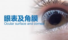 干眼症日常护理应注意哪些